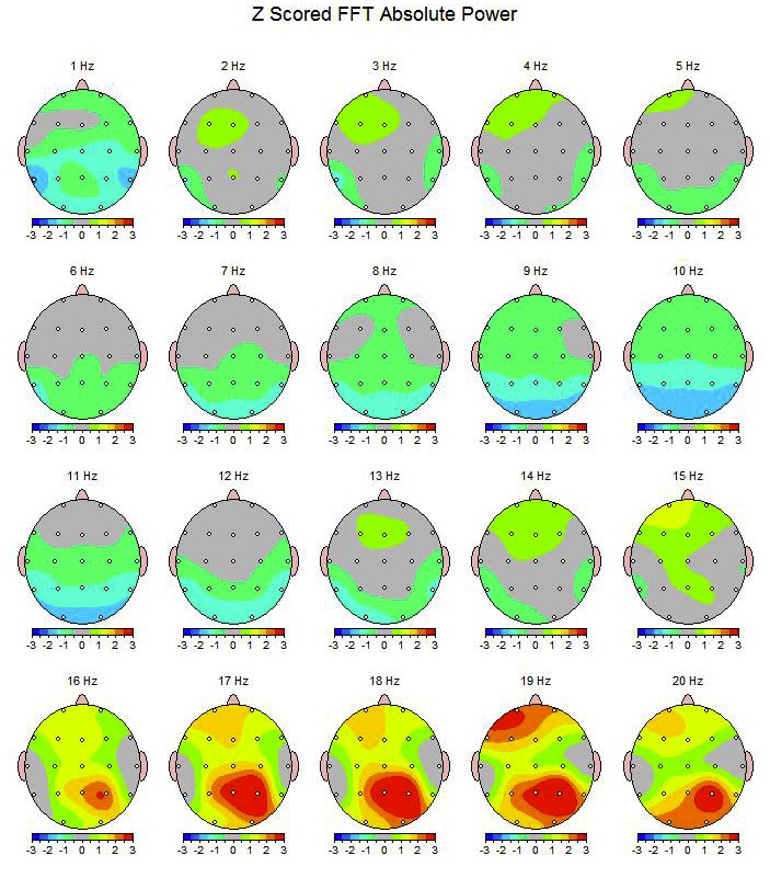 QEEG Brainmapping