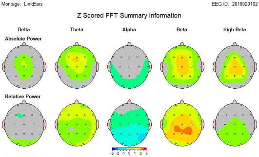 QEEG of TBI patient